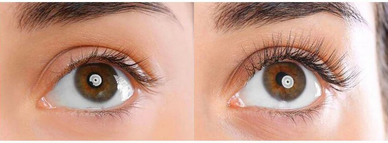 growth of eyelashes before after